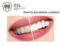 Dantų balinimas lazeriu