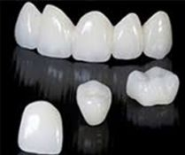 Dantų protezavimas.