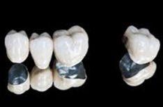 Metalo keramikos protezai;