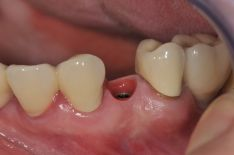 Dantų protezavimas ant implantų
