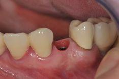 Dantų protezavimas ant implantų-kaip nuosavi dantys!