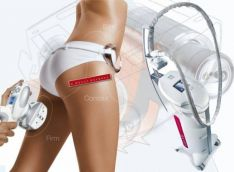 Stangrinantis, anticeliulitinis viso kūno masažas LPG aparatu