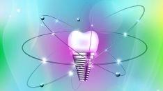 Dantų implantai perima ir tęsia visas prarastų savų dantų funkcijas