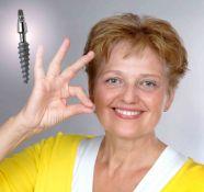 Kuo daugiau implantuojamų dantų, tuo santykinai žemesnė jų kaina.
