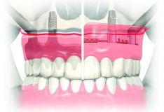 Ilgieji dantų implantai Zygoma – operatyvus dantų implantavimo nykstančiame viršutiniame žandikaulyje būdas