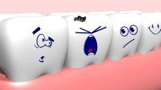 Negydomas dantų ėduonis, arba kariesas, yra dažna dantų praradimo priežastis