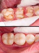 Sugydome dantų likučius tobulai atkuriame jų išvaizdą bei formą