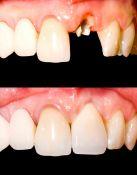 Sugydytą danties likutį atkuriame estetišku ir patvariu danties vainikėliu stiklo pluošto kaiščių pagaba