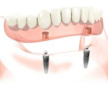 Dantų protezai ant implantų – tai saugiai ir tvirtai fiksuoti burnoje protezai be klijų ir dantų iškritimo rizikos