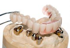 Teleskopiniai dantų protezai yra vienas iš daugelio hibridinių patvarių ir patogių dantų protezų variantų