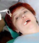 Beskausmis nesugydomų, perteklinių bei kitų probleminių dantų rovimas