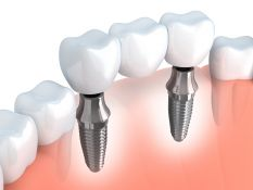 Dantų implantai – visam gyvenimui