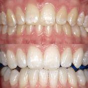Medicininis dantų balinimas