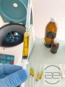 PRP terapija - trombocitais praturtintos plazmos injekcijos