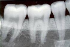 Skaitmeninės dantų nuotraukos.