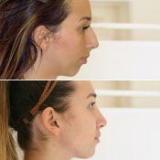 Nosies plastinės operacijos