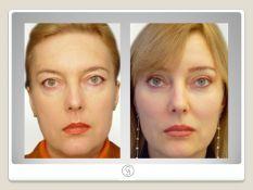 Endoskopinis veido pakėlimas