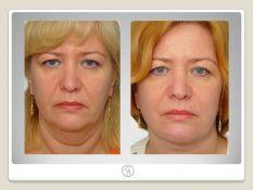 Klasikinis apatinės – vidurinės veido dalies pakėlimas