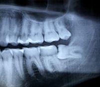 Dantų chirurginis gydymas