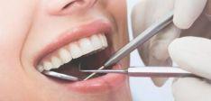 Dantų ligų gydymas