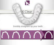 K Line Clear Aligner - skaidrios ortodontinės kapos