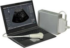 Echo Blaster 128 CEXT-1Z Kit includes