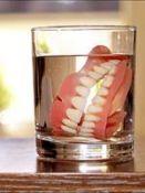 Dantų protezavimas išimamais ir neišimamais protezais