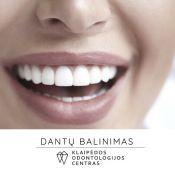 Dantų balinimas