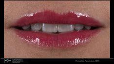 Estetinis dantų plombavimas- nematomos plombos