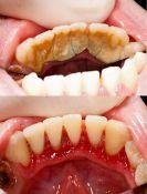Burnos higiena, dantų implantų higiena