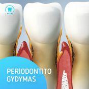 Periodontito gydymas