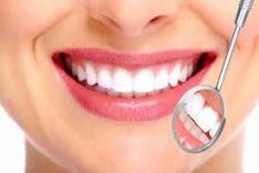 Dantų gydymas,plombavimas