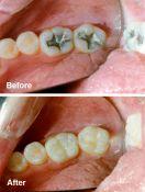 Dantų plombavimas, karieso gydymas