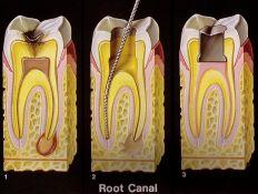 Endodontinis gydymas (šaknų kanalų )