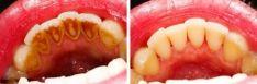 Profesionali burnos higiena (PBH)