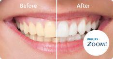 Profesionalus dantų balinimas su PHILIPS ZOOM sistema