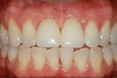 """Dantų implantacija, naudojami vokiški """"Medentika"""" ir šveicariški """"Straumann"""" implantai."""