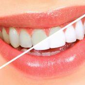 Dantų balinimas kabinete su beyond