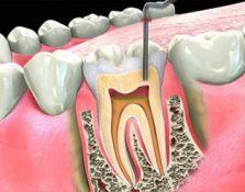 Endodontonis šaknų kanalų gydymas su mikroskopu