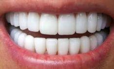 Estetinis dantų plombavimas, protezavimas