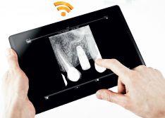 Wi-fi rentgenografijos daviklis RVG 6500 (Carestream, JAV)