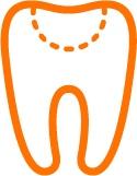 Dantų gydymas ir plombavimas