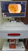 Gydytojo dermatologo konsultacija su viso kūno apgamų apžiūra bei ištyrimu skaitmeniniu videodermatoskopu