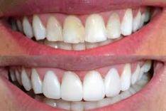 Terapinis dantų gydymas