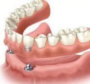 Dantų protezavimas, implantavimas