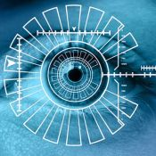 OCT (optinė koherentinė tomografija)