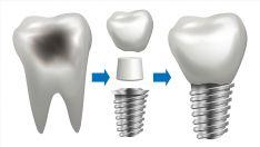 Implantas su cirkonio keramikos vainikėliu. AKCIJA !!