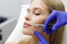 Lūpų putlinimas hialuronu