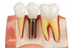 Implantacija ir jos sėkmingumas