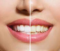Dantų higiena, profilaktika, balinimas